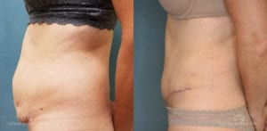 Abdominoplasty Before and After Photos Patient 12A