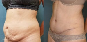 Abdominoplasty Before and After Photos Patient 12B