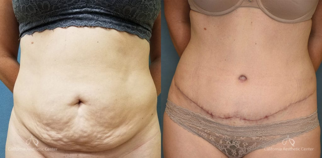 Abdominoplasty Before and After Photos Patient 12C