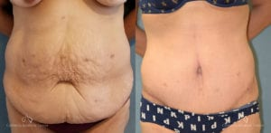 Abdominoplasty Before and After Photos Patient 13C