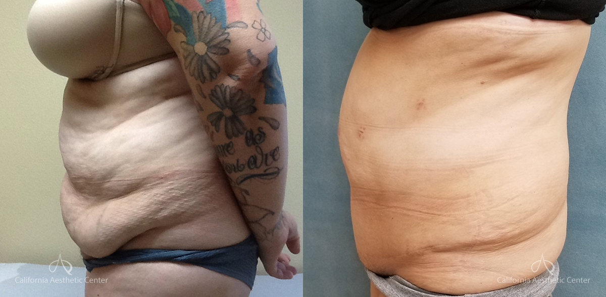Abdominoplasty Before and After Photos Patient 14A