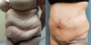 Abdominoplasty Before and After Photos Patient 14B