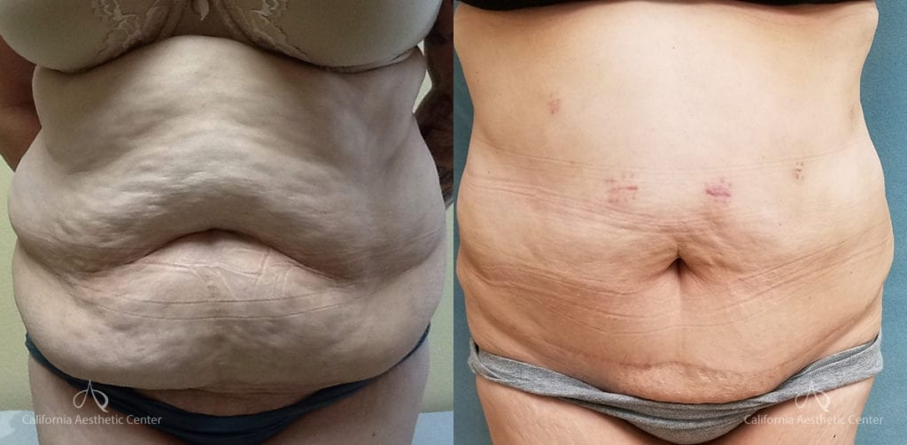 Abdominoplasty Before and After Photos Patient 14c