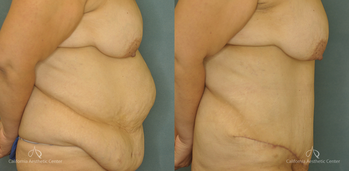 Abdominoplasty Before and After Patient 1A