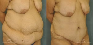 Abdominoplasty Before and After Patient 1B