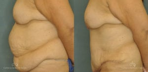 Abdominoplasty Before and After Patient 1C