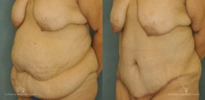 Abdominoplasty Before and After Patient 1D
