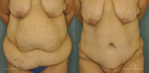 Abdominoplasty Before and After Patient 1E