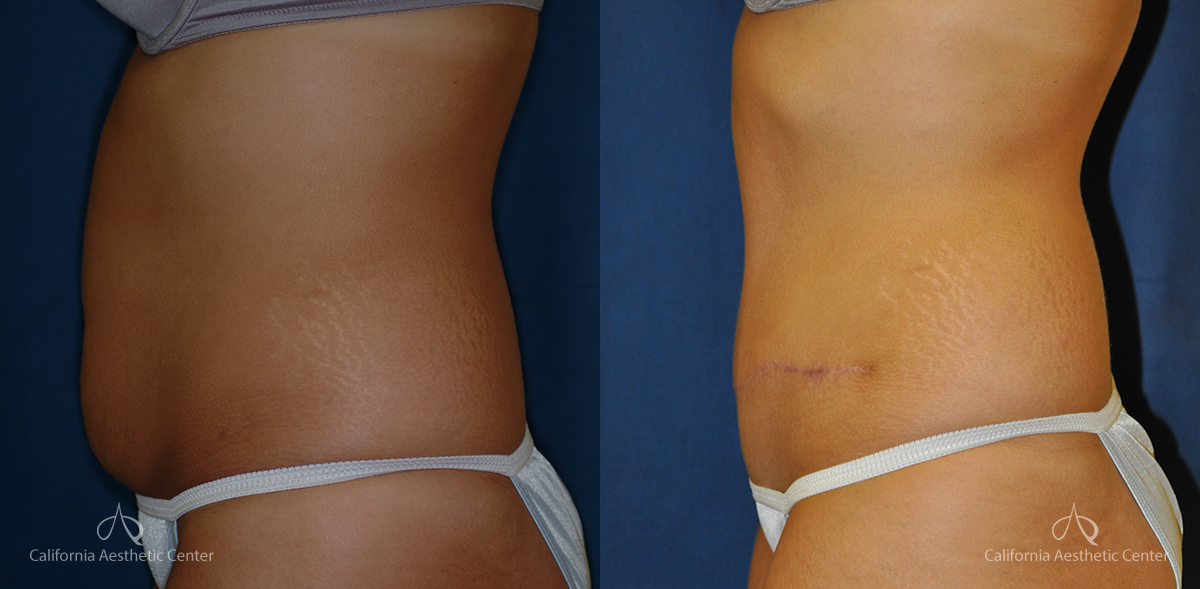 Abdominoplasty Before and After Photos Patient 10A
