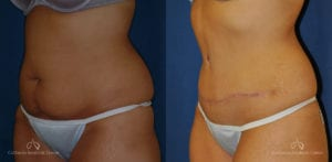 Abdominoplasty Before and After Photos Patient 10B