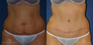 Abdominoplasty Before and After Photos Patient 10C