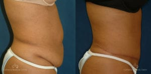Abdominoplasty Before and After Photos Patient 11A
