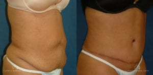 Abdominoplasty Before and After Photos Patient 11B