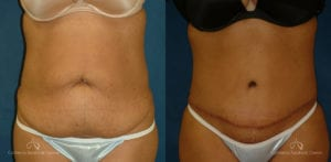 Abdominoplasty Before and After Photos Patient 11C