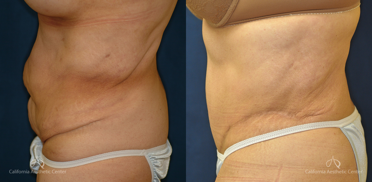 Abdominoplasty Before and After Photos Patient 2A