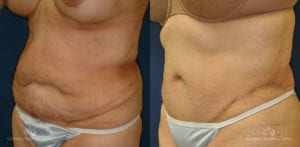 Abdominoplasty Before and After Photos Patient 2B