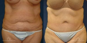 Abdominoplasty Before and After Photos Patient 2C