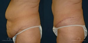 Abdominoplasty Before and After Photos Patient 3A