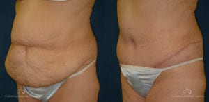 Abdominoplasty Before and After Photos Patient 3B