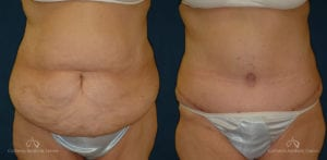 Abdominoplasty Before and After Photos Patient 3C