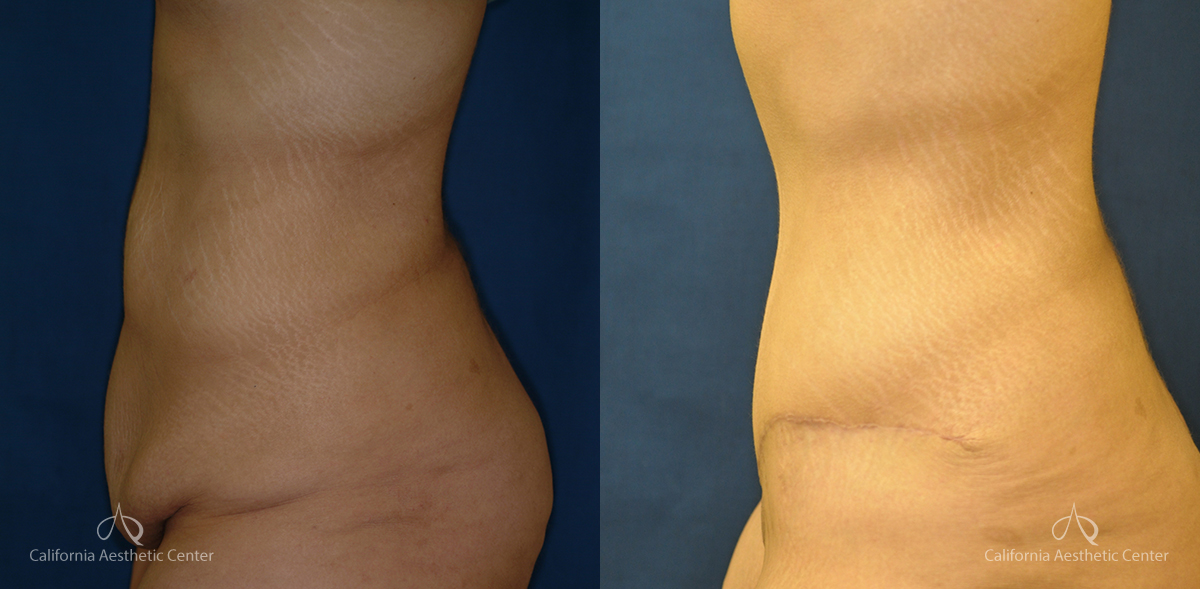 Abdominoplasty Before and After Photos Patient 4A