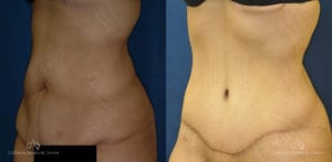 Abdominoplasty Before and After Photos Patient 4B