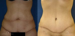 Abdominoplasty Before and After Photos Patient 4C