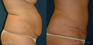 Abdominoplasty Before and After Photos Patient 5A