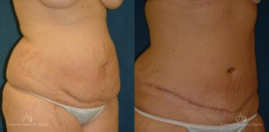 Abdominoplasty Before and After Photos Patient 5B