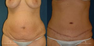 Abdominoplasty Before and After Photos Patient 5C