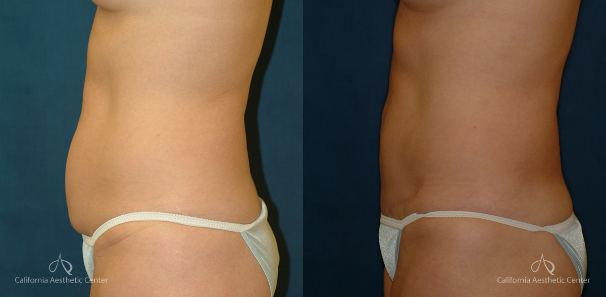 Abdominoplasty Before and After Photos Patient 6A
