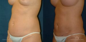Abdominoplasty Before and After Photos Patient 6B