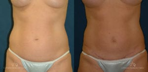 Abdominoplasty Before and After Photos Patient 6C