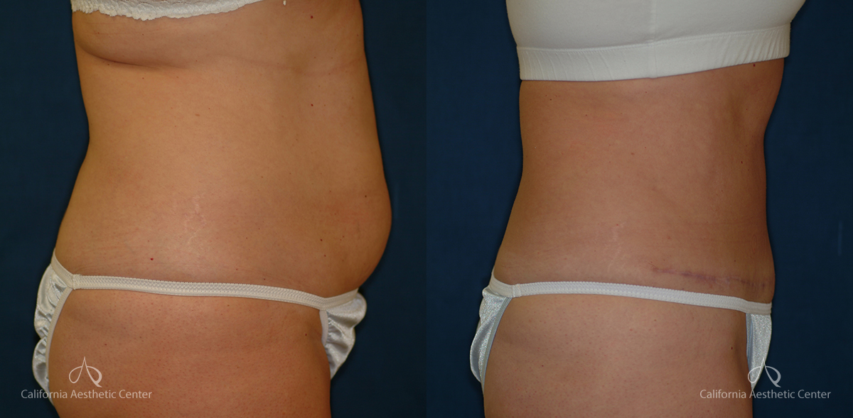 Abdominoplasty Before and After Photos Patient 7A