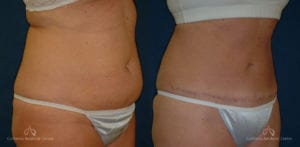 Abdominoplasty Before and After Photos Patient 7B
