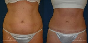 Abdominoplasty Before and After Photos Patient 7C