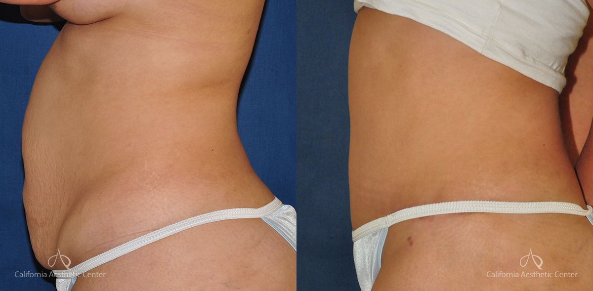 Abdominoplasty Before and After Photos Patient 8A