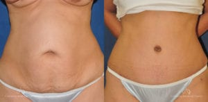 Abdominoplasty Before and After Photos Patient 8C