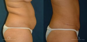 Abdominoplasty Before and After Photos Patient 9A