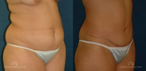 Abdominoplasty Before and After Photos Patient 9B