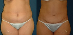 Abdominoplasty Before and After Photos Patient 9C