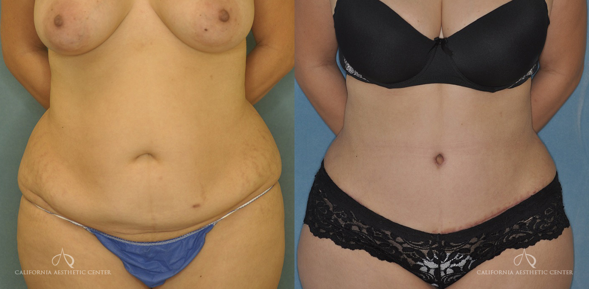 Patient 15 Abdominoplasty Before and After Front View