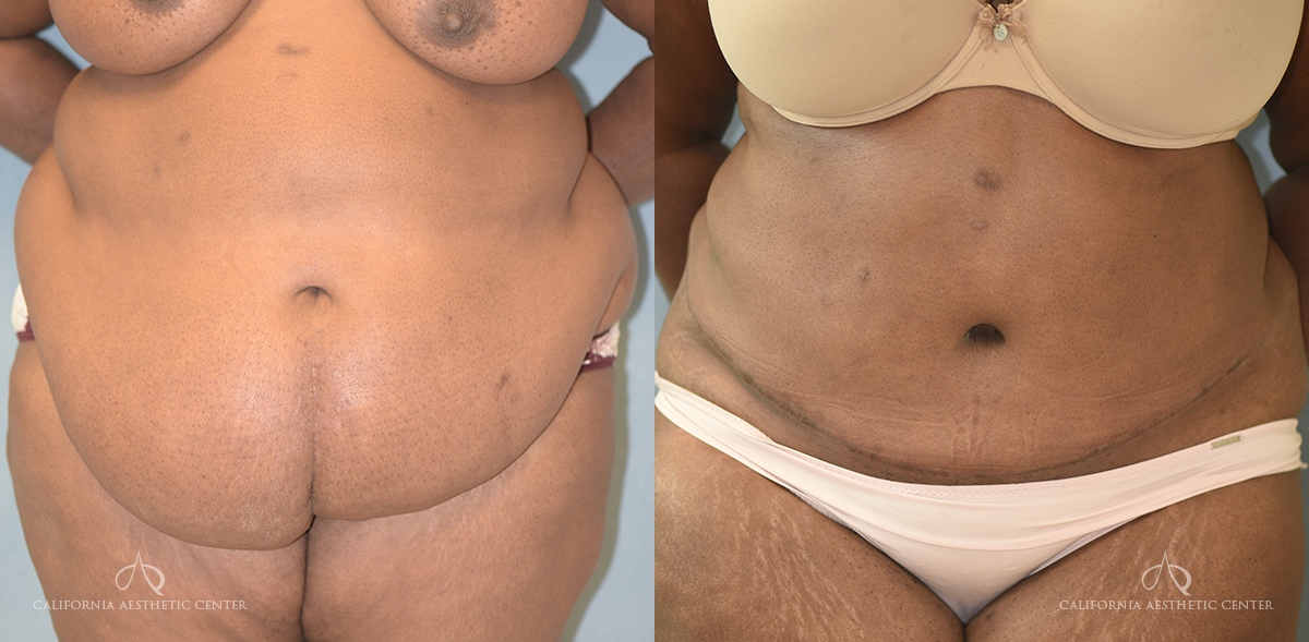 Patient 18 Abdominoplasty Before and After Front View
