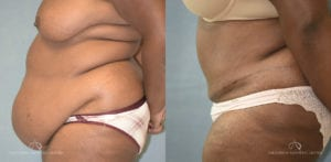 Patient 18 Abdominoplasty Before and After Left Side View
