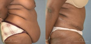 Patient 18 Abdominoplasty Before and After Right Side View