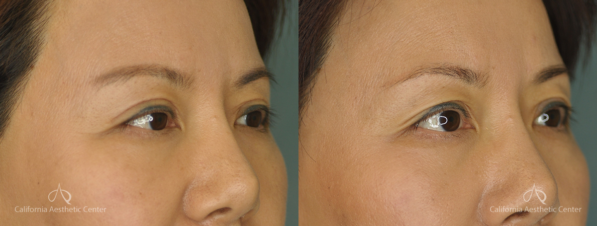 Asian Blepharoplasty Before and After Patient 1A