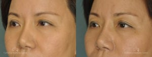 Asian Blepharoplasty Before and After Patient 1B
