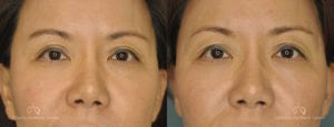 Asian Blepharoplasty Before and After Patient 1C
