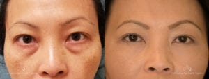 Blepharoplasty Before and After Patient 2A