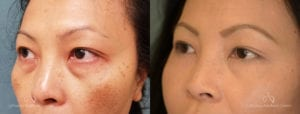 Blepharoplasty Before and After Patient 2B